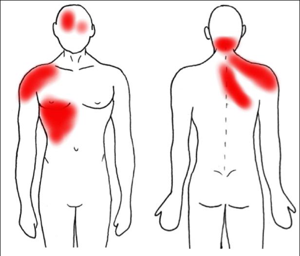 Dolor-Referido-Hígado-y-Vesícula-Biliar