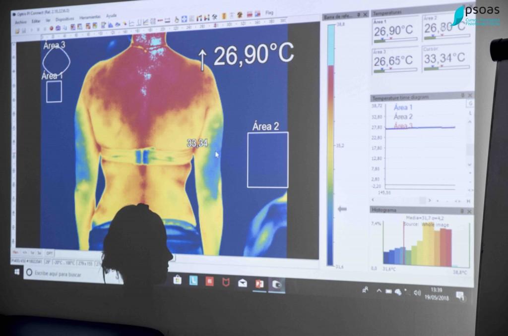 termografía curso de fisioterapia invasiva