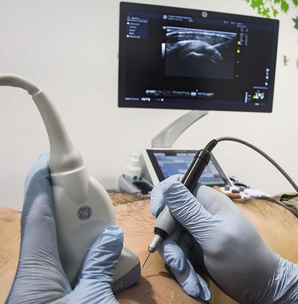 neuromodulación fisioterapia